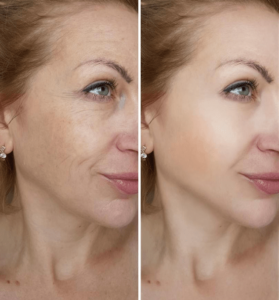 anti-aging-before-and-after-min-279x300