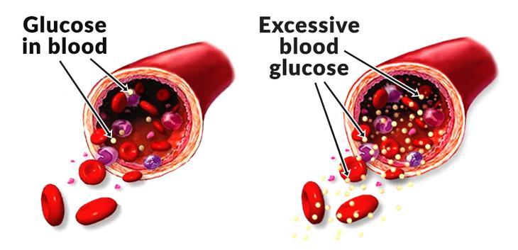 blood-sugar