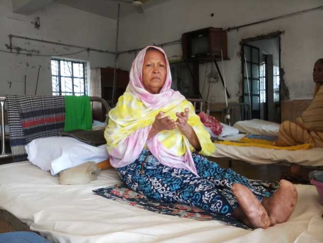 People-living-with-Leprosy_2_-629x472